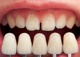 Odontologai gydo